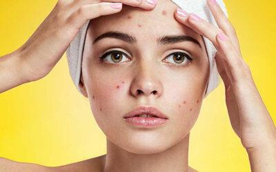 Pelle grassa e acne